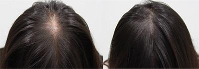 Diga adeus ao boné Samson Hair traz a Guarapuava a Micropigmentação Capilar